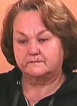 Царапины на лице Гобозовой-
