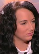 Валерия Уварова подправила себе лицо