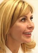 Ирина Агибалова увеличила губы