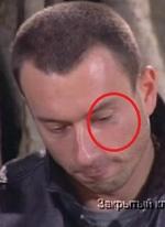 Кто побил Михаила Терёхина или откуда синяк у Миши из Дома 2