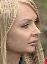 У Дарьи Пынзарь онемела половина лица