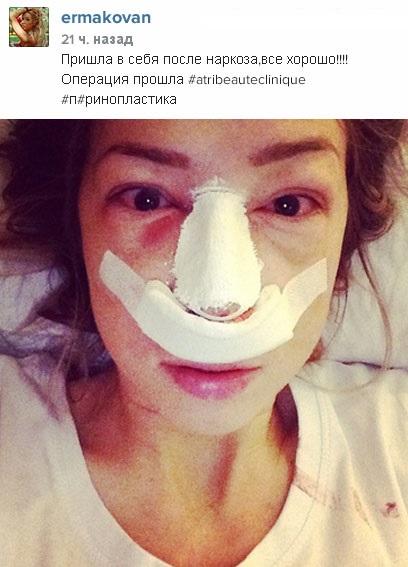 Надежда Ермакова выложила фото после операции на нос