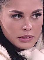Ирина Пинчук не может показывать своё изуродованное лицо