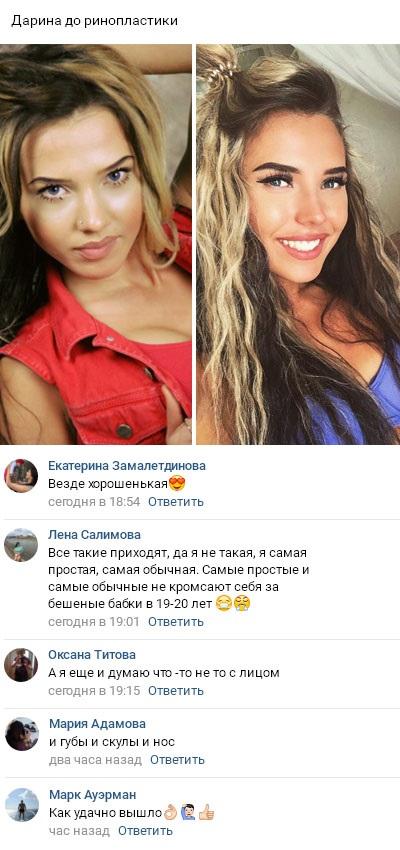 Дарина Маркина такая же жертва пластики как и остальные участницы