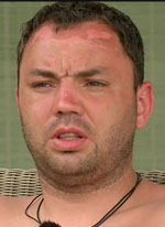 Александр Гобозов серьезно пострадал на Острове Любви