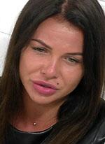 Зрителей ужаснул вид страшной гниющей кожи Александры Шевы