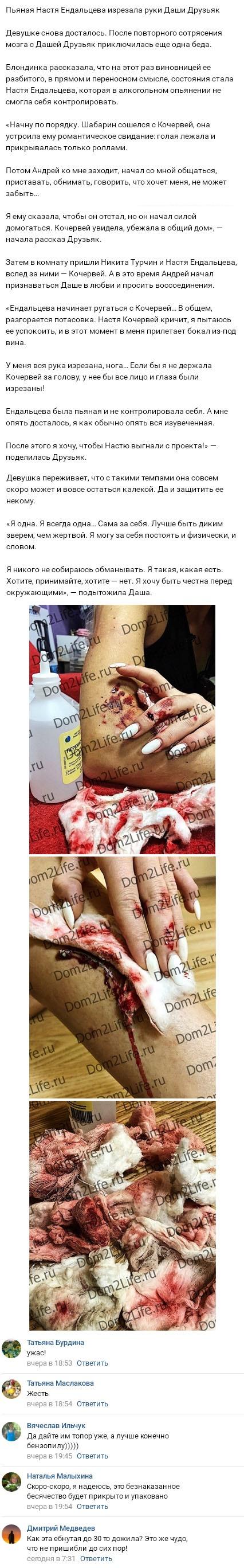 Дарья Друзьяк шокировала фото изрезанных до крови рук