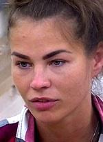 Ольга Сударкина продемонстрировала что стало с ее лицом
