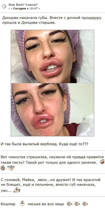 Майя Донцова накачала губы до уровня Александры Шевы