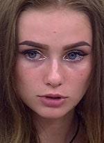 Валерия Хуснутдинова серьезно изуродовала себя по-пьяни