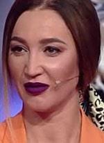 Ольга Бузова сильно перестаралась с уколами красоты