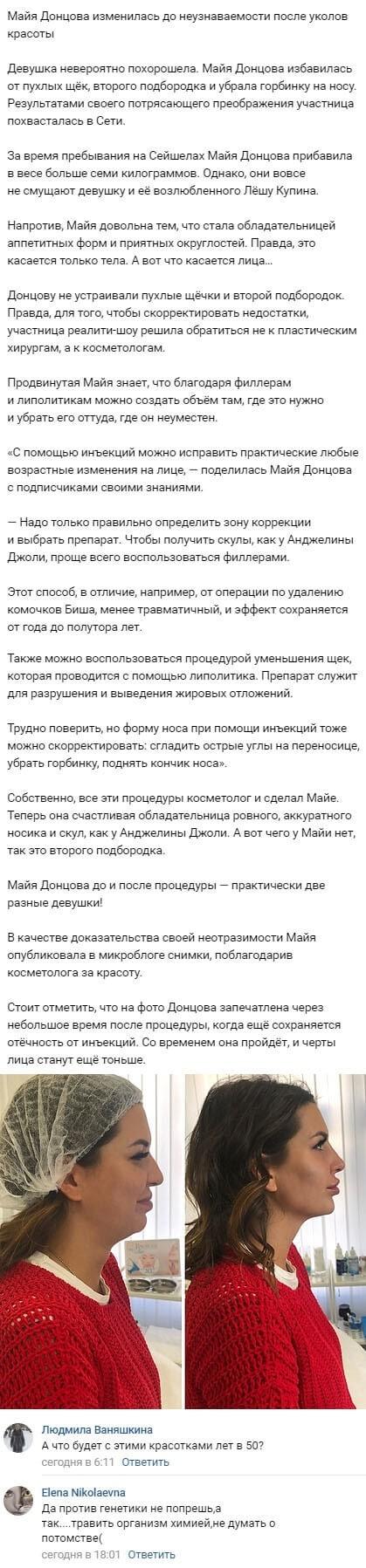 Майю Донцову стало сложно узнать после уколов красоты