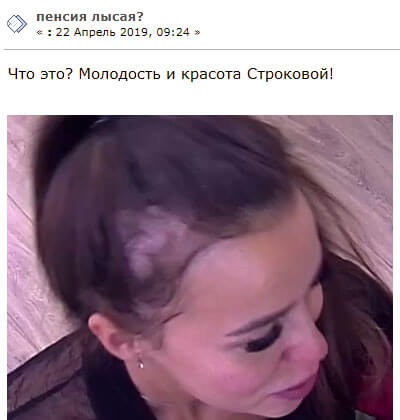 Татьяна Строкова скрывает огромную залысину на голове