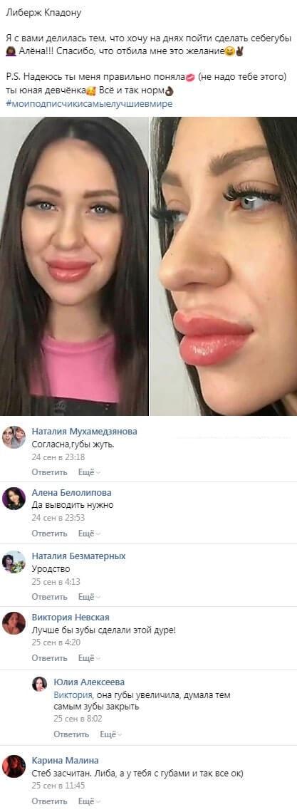 Либерж Кпадону поглумилась над изуродованными губами Алены Савкиной