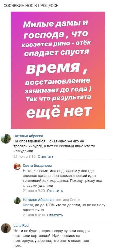 Разгорелись жаркие споры о пластике Алены Савкиной