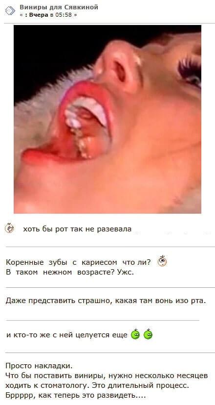 Алена Савкина опозорилась со своими новыми зубами