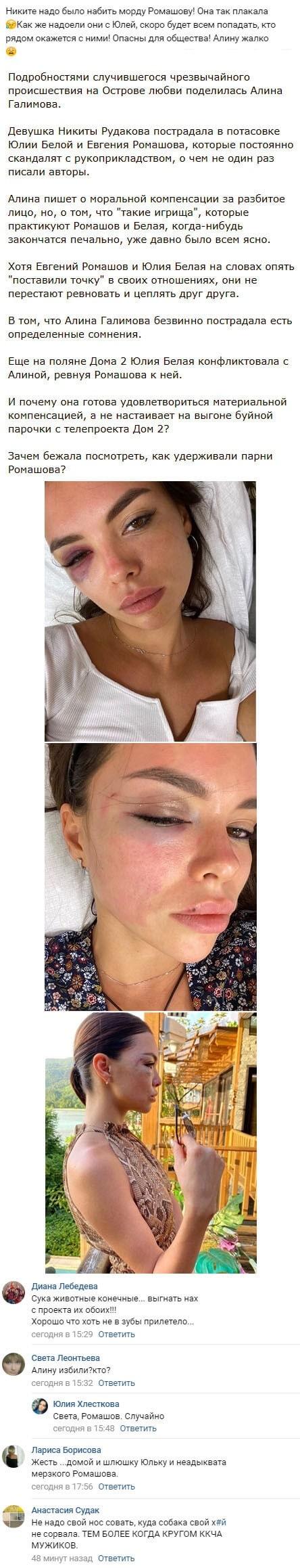 Лицо Алины Галимовой превратили кровавое в месево